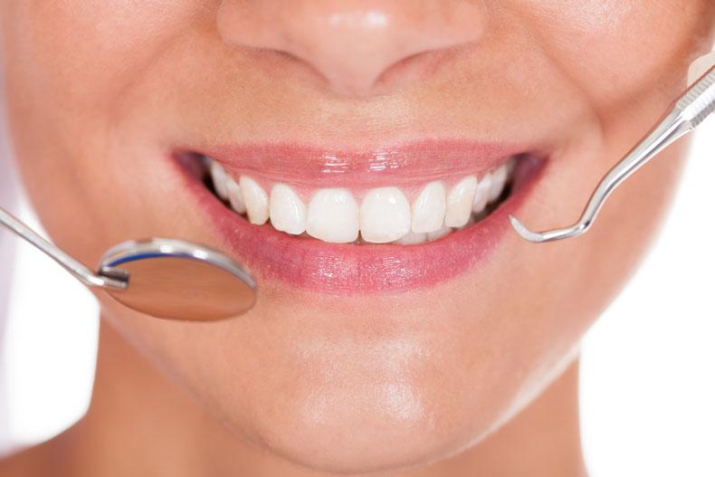 teeth whitening in gold coast